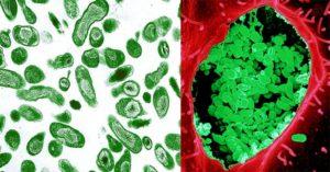 Laboratory Diagnosis, Treatment and Prevention of Coxiella burnetii