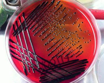 Salmonella typhimurium on XLD agar