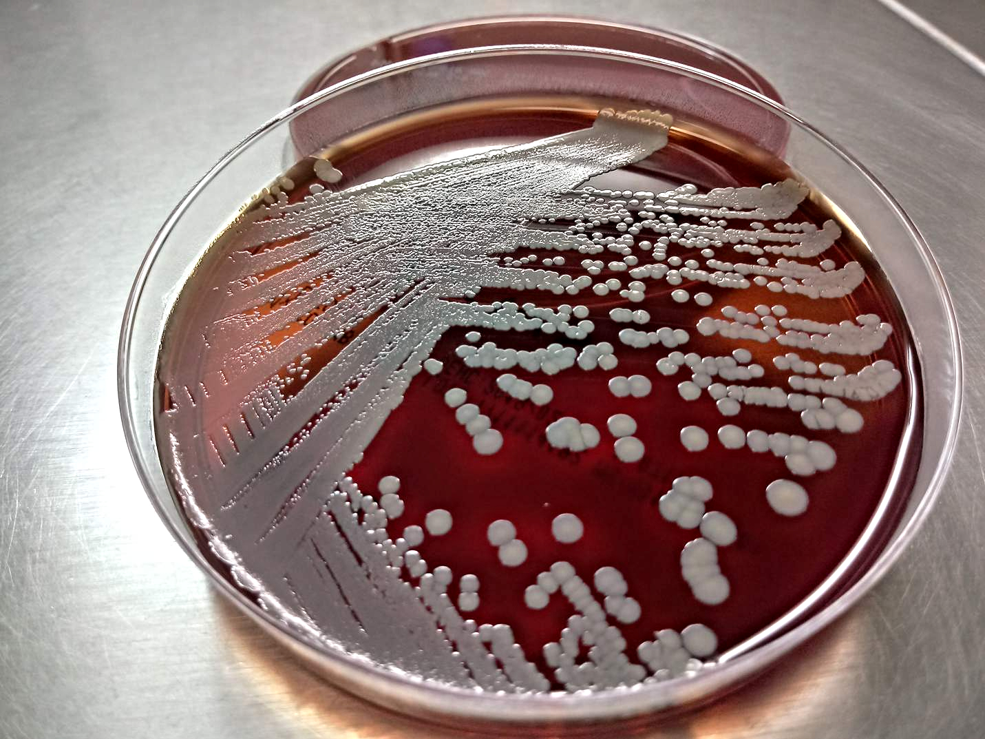 Staphylococcus aureus on Columbia CNA Agar with 5% Sheep Blood