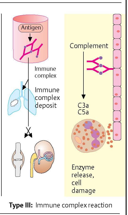 Type III Immune complex-mediated reaction