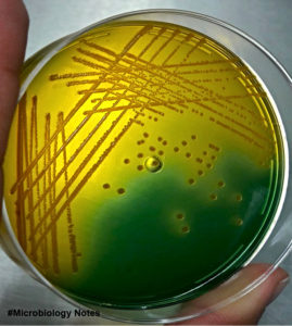 Vibrio cholerae (Owaga) on TCBS Agar
