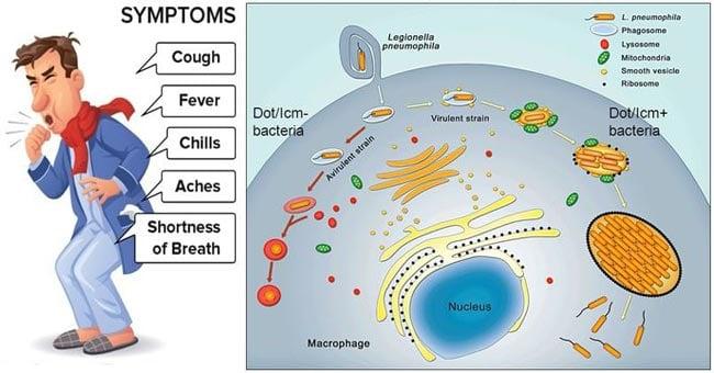 Virulence factors, Pathogenesis and Clinical manifestations of Legionella pneumophila