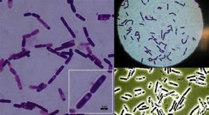 Biochemical Test of Bacillus cereus