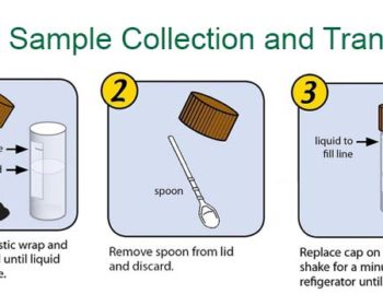 Collection and transport of stool specimens