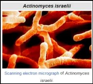Actinomyces israelii