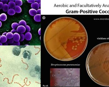 Aerobic and Facultatively Anaerobic Gram-Positive Cocci
