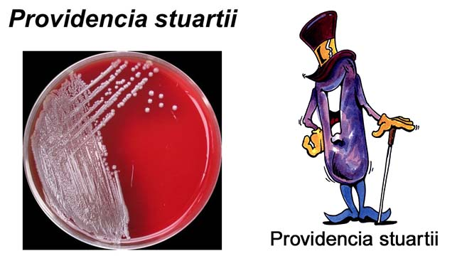 Biochemical Test of Providencia stuartii