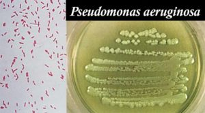 Biochemical Test of Pseudomonas aeruginosa