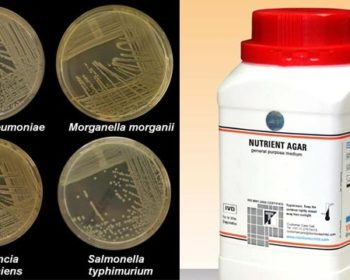 Nutrient Agar- Principle, Composition, Preparation and Uses