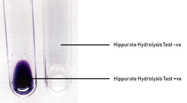 Result Interpretation of Hippurate Hydrolysis Test