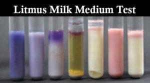 Result Interpretation ofLitmus Milk Medium Test