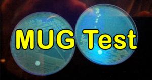 4-Methylumbelliferyl-β-D-Glucuronide (MUG) Test