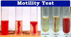 Motility Test- Principle, Procedure and Results