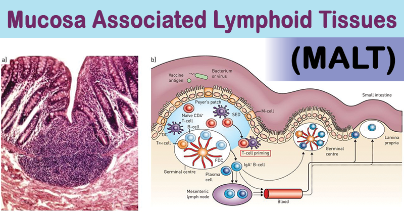 Mucosa Associated Lymphoid Tissues (MALT)