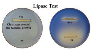 Result Interpretation ofLipase Test