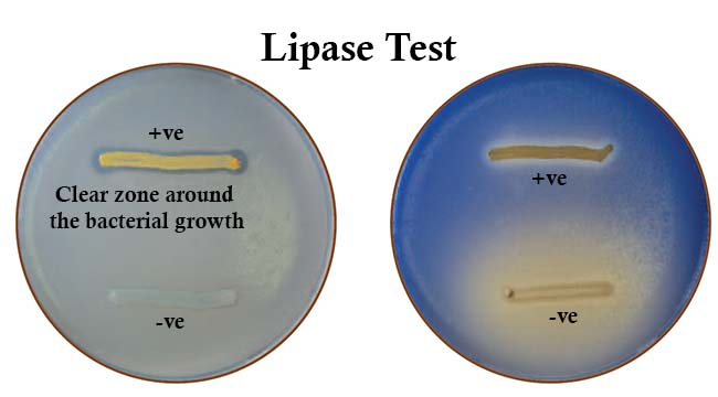 Result Interpretation of Lipase Test