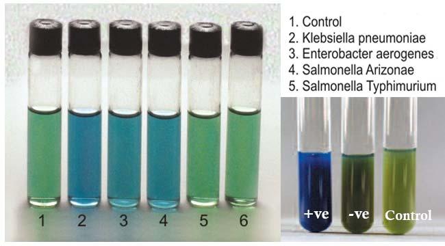 Result Interpretation ofMalonate Test