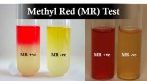 Result Interpretation ofMethyl Red (MR) Test