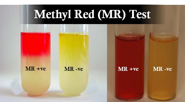 Result Interpretation of Methyl Red (MR) Test