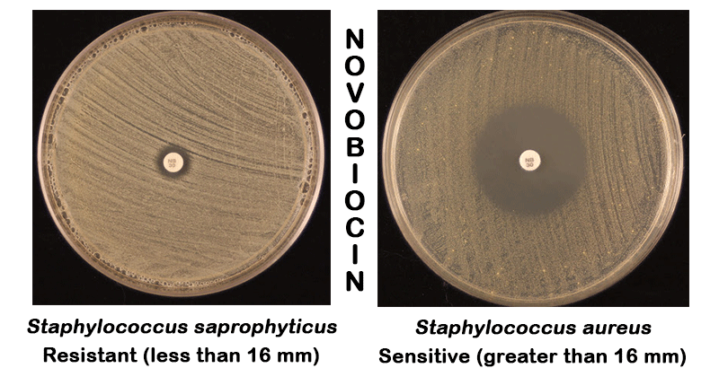 Result Interpretation of Novobiocin Susceptibility Test
