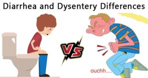 Differences between Diarrhea and Dysentery