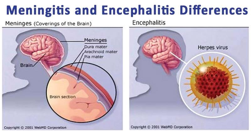Differences between Meningitis and Encephalitis