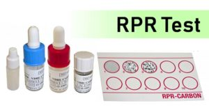 Rapid Plasma Reagin (RPR) Test