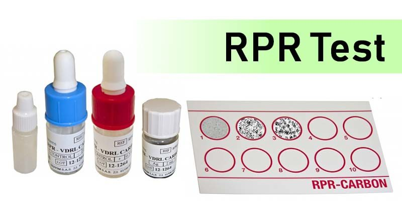 Rapid Plasma Reagin (RPR) Test