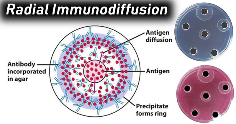 Result Interpretationof Radial Immunodiffusion