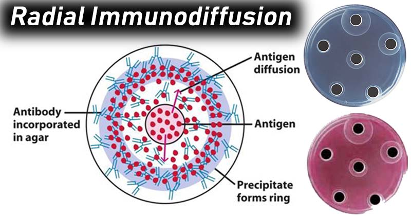 Result Interpretation of Radial Immunodiffusion