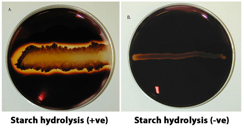 Result interpretation of Starch Hydrolysis Test