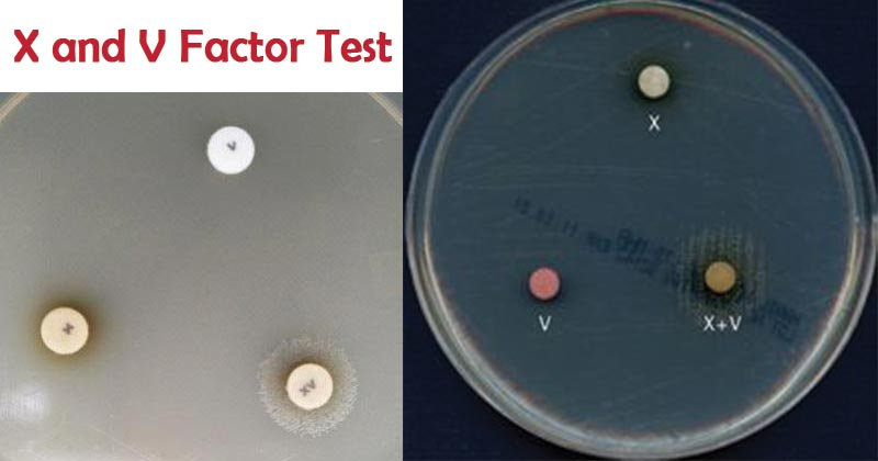 X and V Factor Test forHaemophilus
