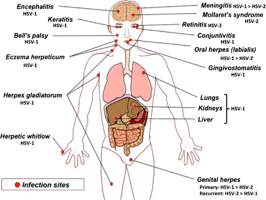 Clinical manifestations of Herpes simplex virus 1 (HSV-1)