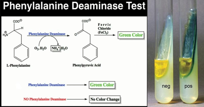 Result Interpretation of Phenylalanine Deaminase Test