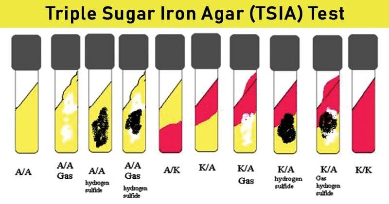 ResultInterpretation of TSIA Test