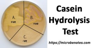 Result of Casein Hydrolysis Test