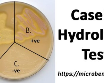 Result ofCasein Hydrolysis Test