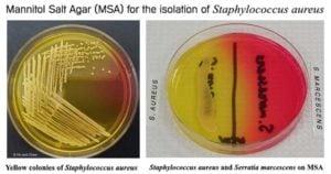 Resultson Mannitol Salt Agar (MSA)