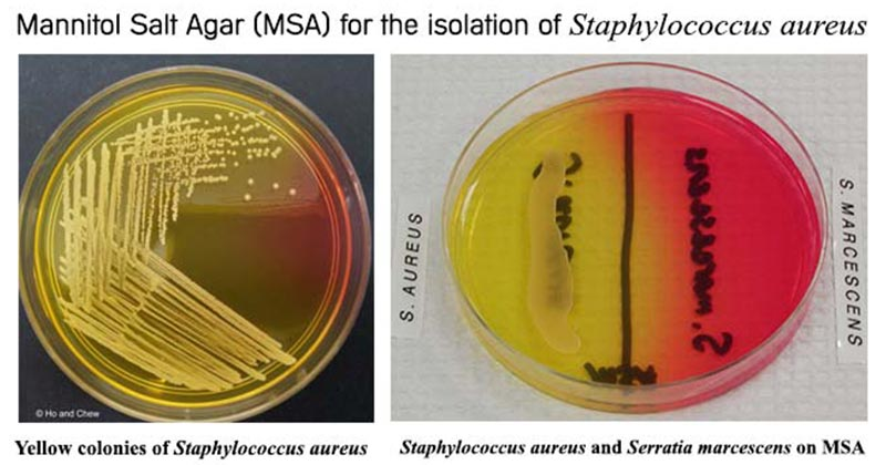 Results on Mannitol Salt Agar (MSA)