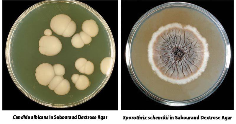 Sabouraud Dextrose Agar (SDA)