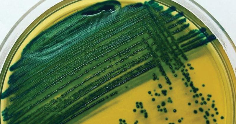 Enterococcus faecalis on CHROMagar Orientation Medium
