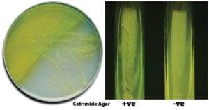 Result Interpretation of Cetrimide Agar