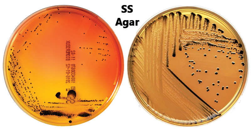 Result Interpretation of SS Agar