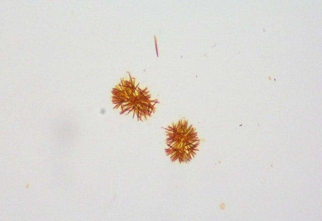 Bilirubin crystals