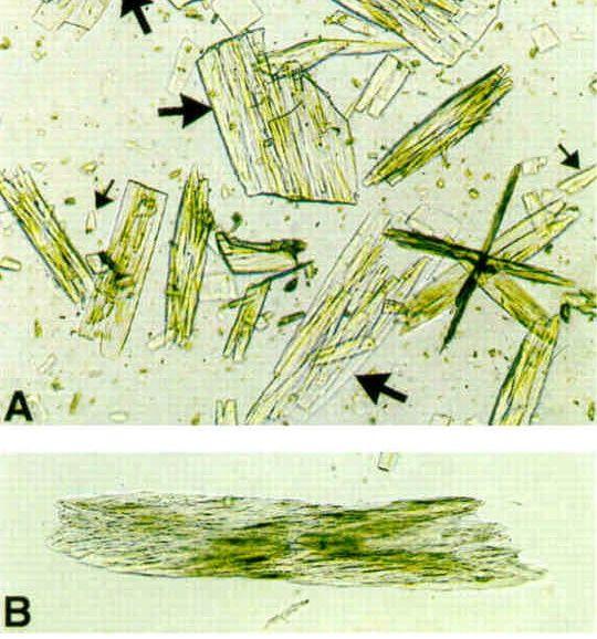 Indinavir crystals