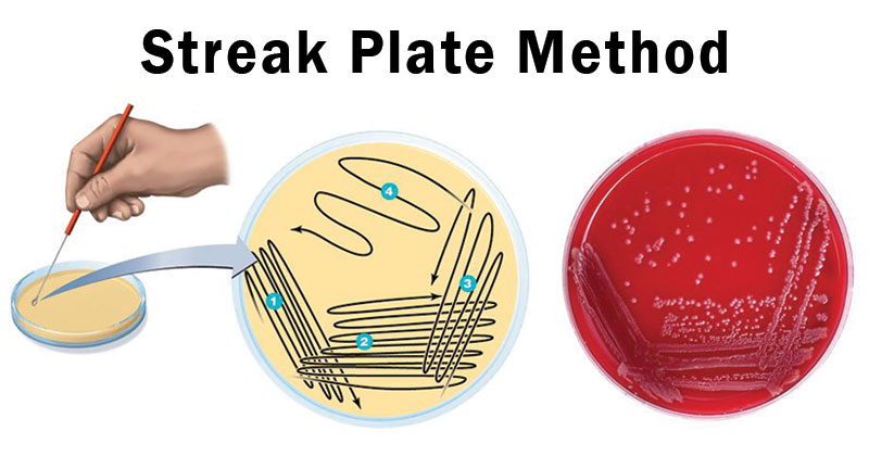 Streak Plate Method- Principle, Methods, Significance, Limitations
