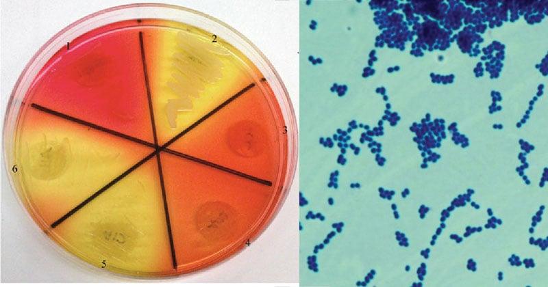 Biochemical Test of Enterococcus faecalis