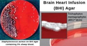 Brain Heart Infusion (BHI) Agar