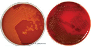 Columbia Agar with 5% Sheep Blood