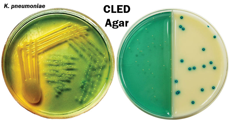 Cystine Lactose Electrolyte Deficient (CLED) Agar